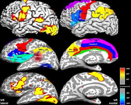 brain fmri scan - photo #8